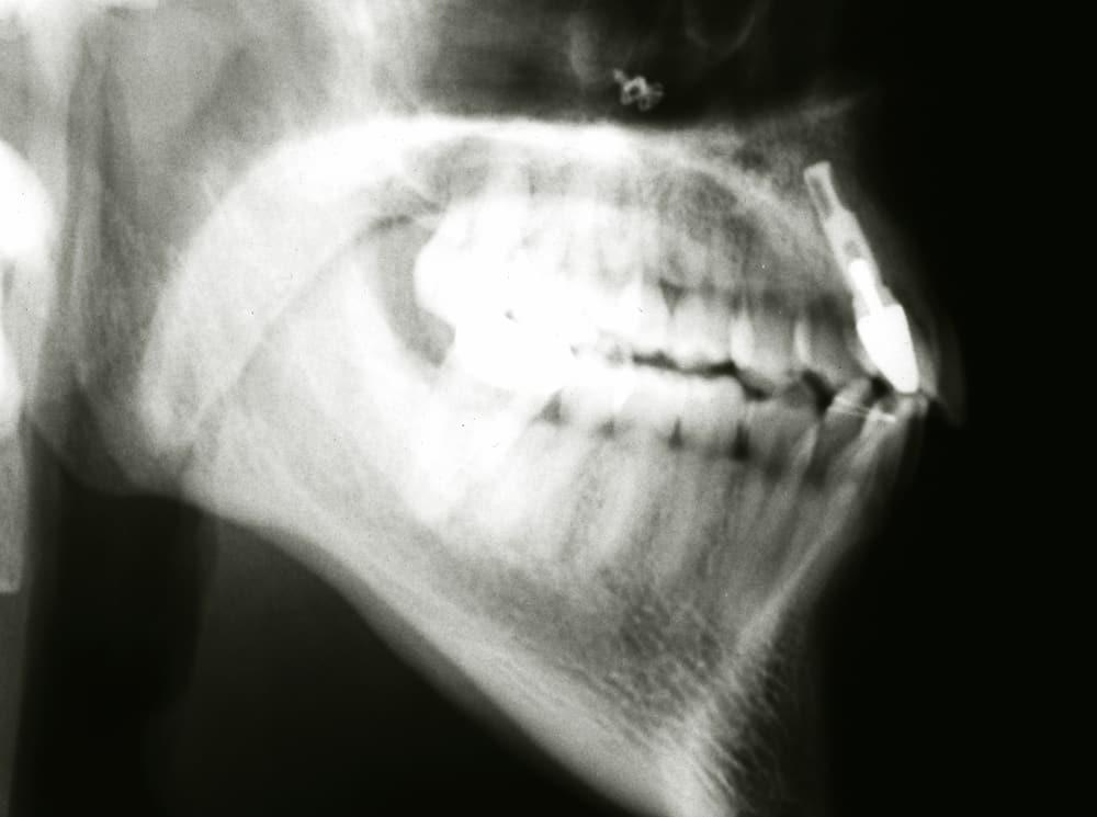 Røntgenbilde av Kristians kjake etter fallet.