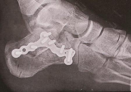 Ankelen til Martin Skaar Olslund etter operasjon. Han falt på led i Yosemite fordi et tak brakk. Foto: Legevakten i Oslo