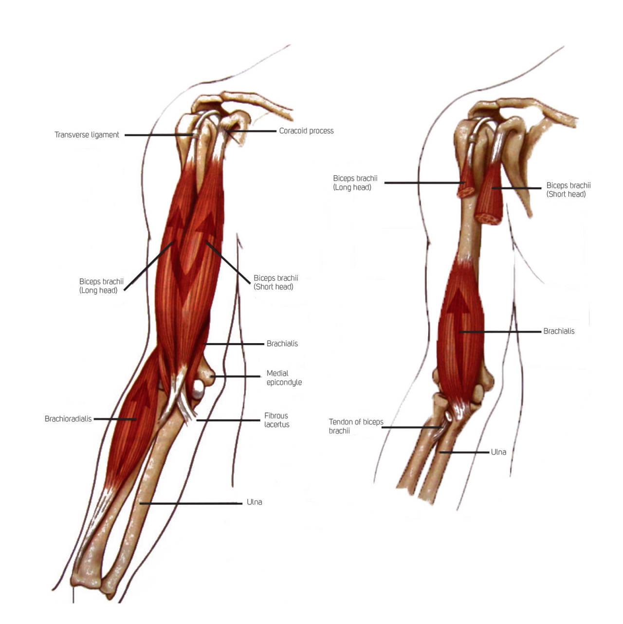 Vond albue: Illustrasjonen viser de tre primærfleksorene i albueleddet: M. biceps brachii, m.brachioradialis og m.brachialis. Legg merke til hvor Brachialis ligger plassert under bicepsmuskelen og hvordan denne lokalisasjonen stemmer overens med hvor de fleste angir å ha vondt når de har «Climber's Elbow».