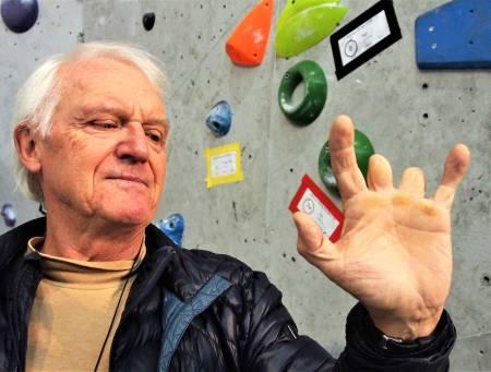 OMFATTENDE SKADE: Slik ser Ivar Walaas venstre hånd ut 23 år etter ulykken. Langfingeren og pekefingeren ble amputert ved det innerste leddet. Lillefingeren ble knust og måtte avstives. Foto: Iver Gjelstenli