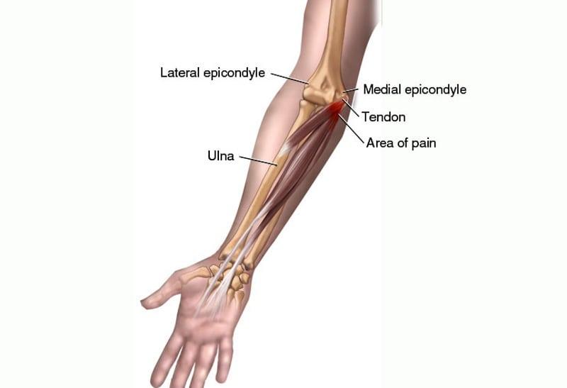 Golfalbue karakteriseres av smerter på innsiden av armen.