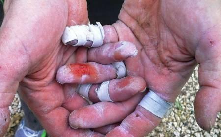 Au: Slik kan det se ut om du er skikkelig gira. Med godt «vedlikehold» av hender og fingre kan dette unngås. Foto: Eirin Nordhus